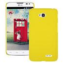 Coque LG L70 D325 Plastique Etui Rigide - Jaune