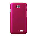 Coque LG L70 D325 Plastique Etui Rigide - Rose Chaud